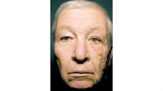 Este es el efecto del sol en un lado de la cara tras 28 años conduciendo un camión