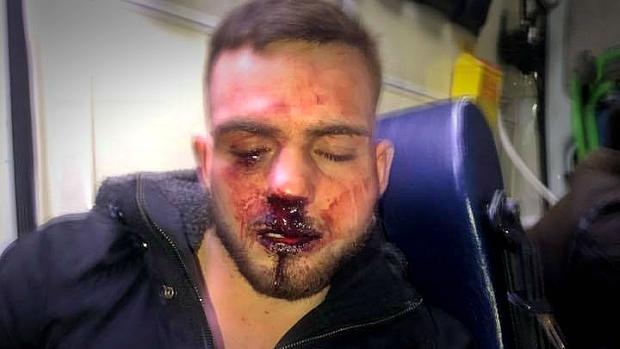 David Espinosa, tras ser agredido en la sala Mae West
