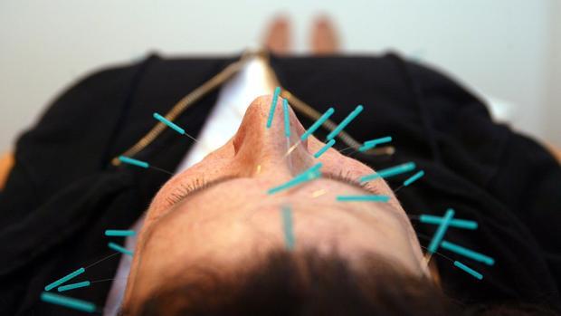 Una paciente sometiéndose a una terapia de acupuntura