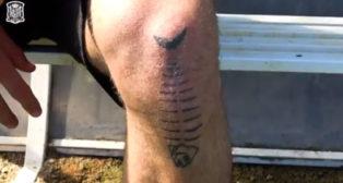 La cicatriz de Sergio Canales en su rodilla izquierda (@sefutbol).