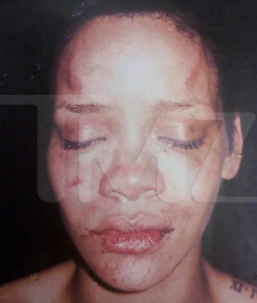 Imagen de la cantante Rihanna tras la agresión