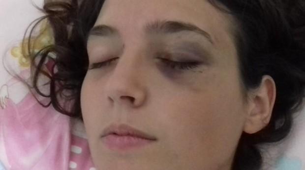 La víctima presenta una fractura en la órbita y contusiones en el ojo además de los múltiples moratones