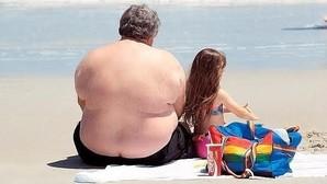 El 70-90% de los pacientes con obesidad padece hígado graso