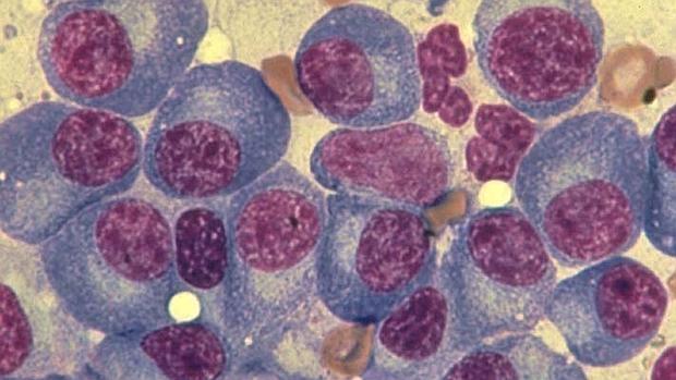 Investigadores españoles desarrollan un nuevo fármaco para tratar el mieloma