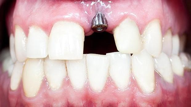 España es uno de los países de la UE en los que se llevan a cabo más implantes dentales