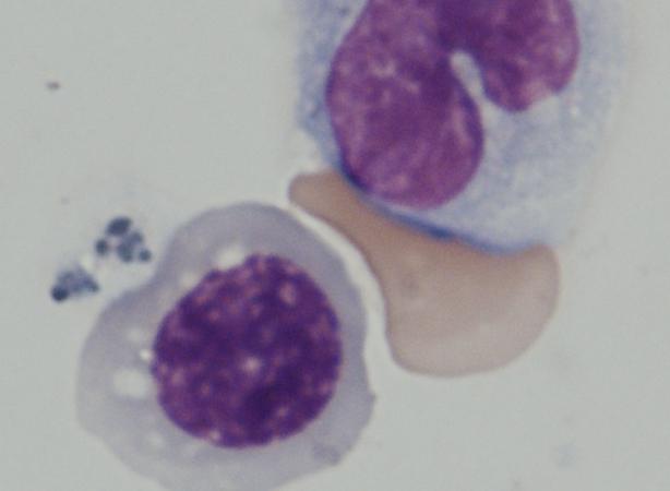 Imagen de las células sanguíneas humanas CD45 + diferenciadas de las células iPS