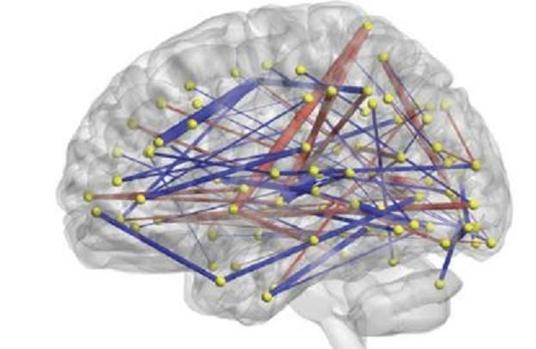 El análisis de las conexiones cerebrales permite predicir si un bebé padece TEA