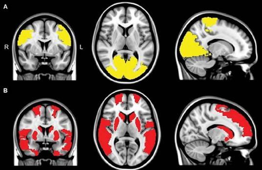 Disminución de la conectividad en los lóbulos paracentral y occipital en pacientes con alucinaciones visuales (abajo)