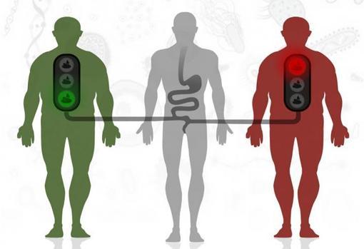 Trasplante de materia fecal de donante sano a receptores con obesidad