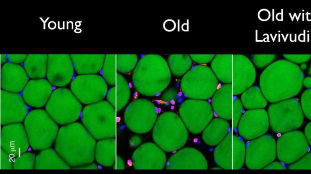 Dos semanas de tratamiento redujeron los signos de inflamación crónica (los glóbulos blancos teñidos de rosa entre las células grasas verdes) en el tejido adiposo del ratón.