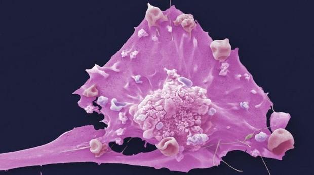 Células del cáncer de Mama