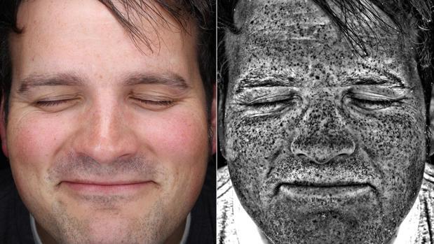 Los retratos ultravioleta permiten ver los daños invisibles del sol en la piel