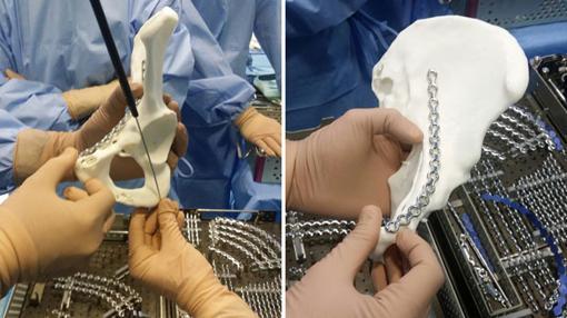 Utilización de huesos impresos en 3D en intervenciones en el hospital Virgen del Rocío