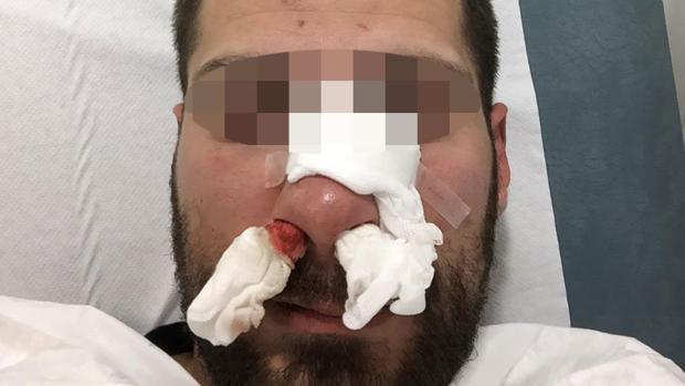 Imagen del policía tras la paliza