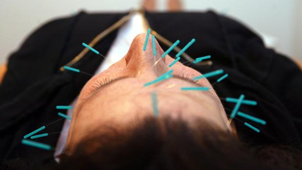 Un hombre se somete a una sesión de acupuntura